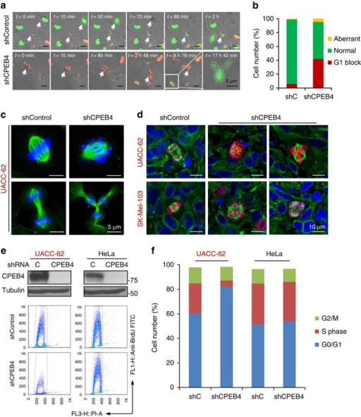Cell cycle defects in CPEB4-depleted melanoma.(a) Time-lapse analysis of aberrant mitosis in cell line SK-Mel-103 labelled with RFP-Cdt1 and GFP-Geminin fusion proteins (FUCCI system)41 and transduced with control or CPEB4 shRNAs (see Supplementary Movies 1 and 2 for real time imaging of this process in shC- and shCPEB4-transduced cells, respectively). (b) Quantification of cells undergoing normal or aberrant mitosis or blocked in G1 from experiments shown in a. (c) Confocal imaging of mitotic alterations of cultured UACC-62 melanoma cells expressing control or CPEB4 shRNA. DNA and spindles were visualized by DAPI (blue) and α-Tubulin (green) immunofluorescence, respectively. (d) Aberrant mitosis detected by confocal immunomicroscopy in xenografts generated with UACC-62 or SK-Mel-103 cells expressing control or CPEB4 shRNAs. Proliferating cells were identified by phospho-Histone 3 (red immunofluorescence). DAPI (blue) and α-Tubulin (green) were used to label DNA and spindles, respectively. (e) Cell cycle profiles of UACC-62 and HeLa cells infected with lentiviruses coding for control or CPEB4 shRNA (see depletion in the immunoblots of the upper panels). Shown are flow cytometry plots of the indicated cells processed to visualize BrdU incorporation. (f) Distribution of the indicated cell populations at the different phases of the cell cycle. The percentages of cells at the G0/G1, S or G2/M phases were determined by BrdU and PI staining.