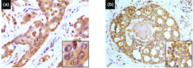 Examples of IGFBP-3 immunoreactivity in infiltrating ductal carcinoma of the breast with concomitant DCIS. Immunostaining was performed as described in the Methods section, and nuclei were counterstained with haematoxylin. (a) A tumour showing cytoplasmic IGFBP-3 expression in invasive ductal cancer. (b) A similar cytoplasmic IGFBP-3 positivity in concomitant DCIS. High-power magnification (original magnification × 400).