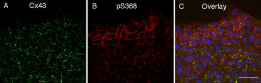 Changes in Cx43 and pS368 levels 24 h after scratch wounding HFKs. Immunofluorescence for total Cx43 (A) and pS368 (B) staining and their colocalization (C). DAPI nuclear staining (blue) is also included in the overlay. Bar, 50 μm.