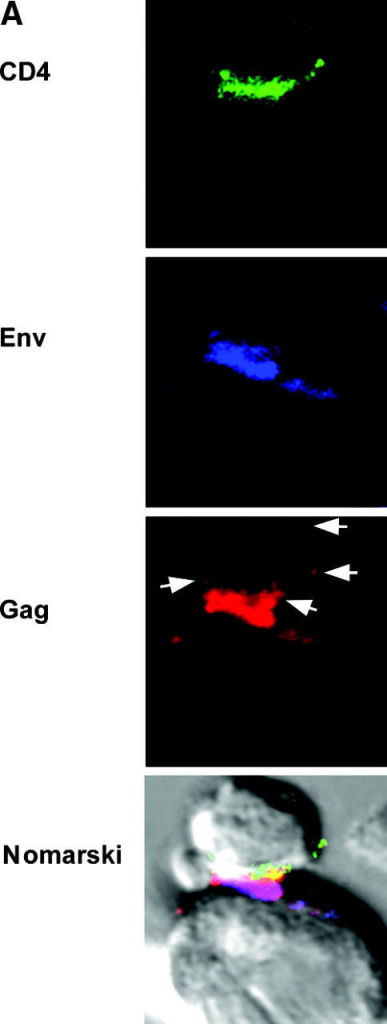 Polarization and transfer of HIV antigens. Conjugates were formed between effector and target cells in the presence of mAbs specific for CD4 (green) and Env (blue). (A) Cells were fixed, permeabilized, and stained for Gag (red); arrows show Gag staining within the target cell. (B) Conjugates were prepared as for A, but incubated at 37°C for 3 h before fixation, permeabilization, and Gag staining. (C) Conjugates were prepared for 1 h as aforementioned, except that the effector cells were prelabeled with CellTracker green. After permeabilization, cells were stained for Gag (blue) and EEA1 (red); a three-dimensional reconstruction of a z series of images is shown.