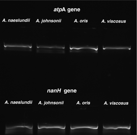 Reverse transcriptase (RT)-PCR assays showing expression of nanH and the housekeeping gene atpA in the type strains of Actinomyces oris (CCUG 34288; EU805602), and Actinomyces johnsonii (CCUG 34287; EU805600), Actinomyces naeslundii (CCUG 2238; EU805601) and Actinomyces viscosus (NCTC 10951; EU805603). Negative controls, omitting the RT in the reaction mix, yielded no amplicons from any strain.