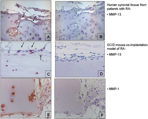 Expression of matrix metalloproteinase 13 (MMP-13) in human rheumatoid arthritis (RA) (A) synovial tissue (magnification ×200) and (B) the isotype control (magnification ×200). Arrows indicate the expression of MMP-13 at sites of cartilage destruction. Expression of MMP-13 in the explants of the SCID-mouse co-implantation model of (C) RA (magnification ×400) and (D) the isotype control staining (magnification ×400). Expression of (E) MMP-1 (magnification ×400) and (F) the isotype control staining (magnification ×400).