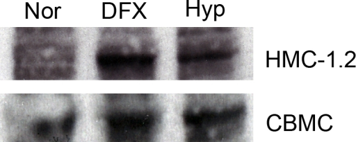 HIF-1α accumulation under hypoxia.HMC-1.2 and CBMC were cultured for 24 h under hypoxia or normoxia. HIF-1α accumulation was determined by western blot. DFX was used as a positive control. The figure is representative of three independent experiments.