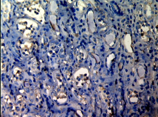 MMP-2 expression in renal tissue with different degree of inflammatory infiltration(EnVision assay; original magnification × 200). IF/TA-III Group.