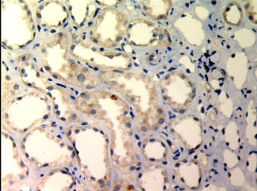 TIMP-1 expressions in renal tissue with different degree of interstitial fibrosis/tubular atrophy. (EnVision assay; original magnification × 200). IF/TA-I Group.