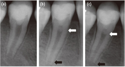 (a) Immediate post-operative radiograph following silicate cement (Biodentine) placement and glass ionomer cement (Fuji IX) restoration; (b) Three months follow-up radiograph: formation of pulpal roof dentin bridge (white arrow) and root edification (black arrow); (c) Six months follow-up radiograph.