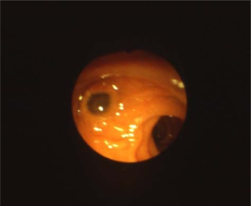 Duodenoscopy: characteristic mucin extrusion through the ampulla of Vater