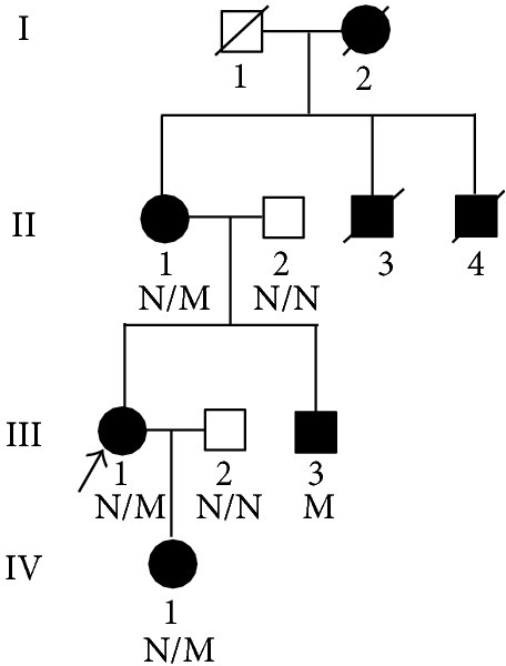 Pedigree of the family with X-linked Alport syndrome. N: normal, M: COL4A5 c.499delC (p.Pro167Glnfs*36) mutation.