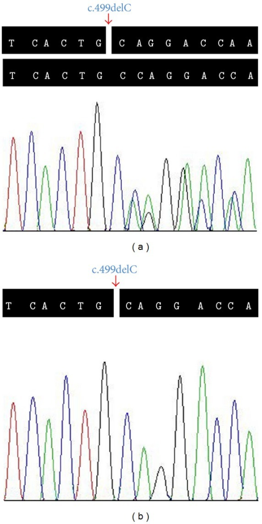 Sequencing analysis of COL4A5 c.499delC (p.Pro167Glnfs*36) mutation. The arrow shows site of the novel c.499delC (p.Pro167Glnfs*36) deletion mutation in the COL4A5 gene. (a) Heterozygous mutation carrier (III: 1). (b) Hemizygous mutation carrier (III: 3).