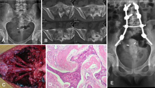 The patient was diagnosed for cervical cancer (Number 14). X-ray (A) and computed tomography (CT) (B) showed a large sclerotic lesion involving the sacrum. Intraoperative picture (C) demonstrated sacral nerve roots preserved after resection of metastatic lesion. Pathological examination revealed squamous cell carcinoma (D) (hematoxylin and eosin (H&E) stain, ×100). Postoperative x-ray (E) showed screw-rod system reconstruction.
