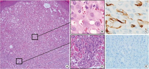 Histologic features of the first lesion. (A) The lesion is a poorly differentiated cellular tumor with focally infiltrating borders in the superficial dermis. (B) Most of the lesion shows solid proliferation of epithelioid endothelial cells. (C) Epithelioid endothelial cells are focally positive for CD34 immunohistochemical staining. (D) At the periphery, well-canalized vessels are observed. (E) Human herpesvirus-8 related antigen is negative.