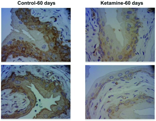 Keratin 14 protein expression in mouse bladder tissues by immunohistochemical analysis. The slides of bladder tissue were hybridized with anti-keratin 14 antibodies and then photographed under ×400 microscopy. Upper and lower images, representative images from two different mouse bladders.