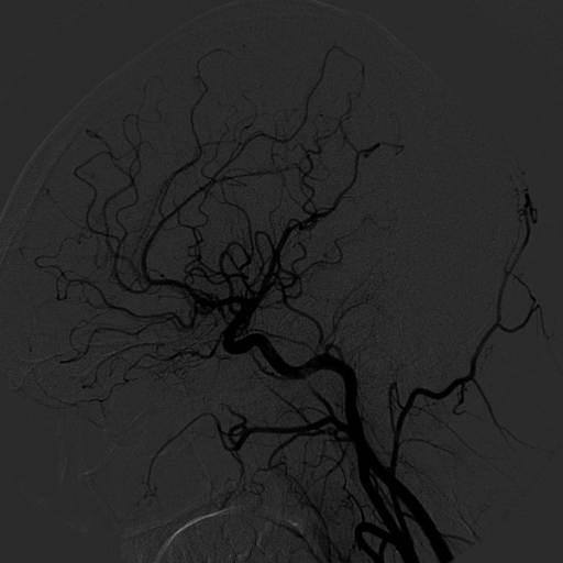 A 6-month follow-up angiography of the left common carotid artery – complete embolization of the aneurysm.