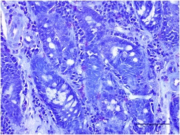 Duodenal section from a dog with chronic enteropathy stained with toluidine blue for metachromatic staining of mast cells (×200). Purple cells represent mast cells. Bar = 100 μm.