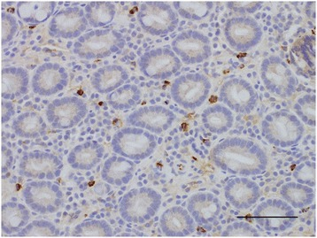 Duodenal section from a dog with chronic enteropathy labelled immunohistochemically with anti-human mast cell tryptase (×200). Brown cells represent mast cells. Bar = 100 μm.