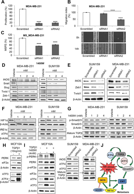 iNOS knockdown impairs tumorigenicity and EMT by a dual impact on HIF1α and ER stress/TGFβ/AFT4/ATF3 crosstalk. Proliferation (A), migration (B), and mammosphere-forming efficiency (MSFE) (C) in MDA-MB-231 cells transiently transfected with two different NOS2-directed siRNAs (siRNA1 and siRNA2) compared with scrambled control. Western blot analysis of NOS isoforms (iNOS, eNOS, and nNOS) and EMT transcription factors in MDA-MB-231 and SUM159 cell lines treated with (D) 1400 W and (E) siRNA-mediated NOS2 knockdown. (F) Selective iNOS inhibition reduced hypoxia (HIF1α) and ER stress markers (IRE1α and ATF4). (G) Phospho-Smad2/3, Smad2/3, and mature TGFβ protein levels in MDA-MB-231 and SUM159 cells. (H) Recombinant TGFβ1 (10 ng/mL for 7 days) activates the PERK/eIF2α/ATF4/ATF3 axis in MCF10A. (I) Effects on the PERK/eIF2α/ATF4/ATF3 axis by co-treatment of recombinant TGFβ1 (10 ng/mL, 7 days) and 1400 W (4 mM) for 24 hours in MCF10A cells. iNOS, ATF4, ATF3, and mature TGFβ protein levels in siRNA-mediated NOS2 knockdown (siRNA2) MCF10A cells for 96 hours. (J) Selective iNOS inhibition is postulated to impair EMT and tumor cell migration by an impact on HIF1α, ER stress (IRE1α/XBP1), and the crosstalk between ATF4, ATF3, and TGFβ. Results were normalized to scrambled. Data are presented as mean ± standard error of the mean. ****P <0.0001. 1400 W, N-[[3-(aminomethyl)phenyl]methyl]-ethanimidamide; ATF3, activating transcription factor 3; ATF4, activating transcription factor 4; EMT, epithelial-mesenchymal transition; ER, endoplasmic reticulum; HIF1α, hypoxia-inducible factor 1α; iNOS, inducible nitric oxide synthase; siRNA, small interfering RNA; TGFβ, transforming growth factor β.