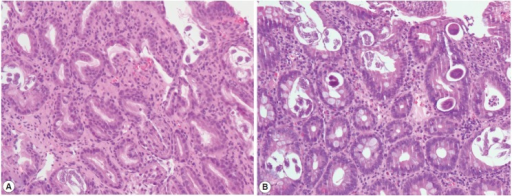 Histology of the biopsied stomach and duodenal tissues demonstrating a parasitic infection. Multiple eggs, adult females, and larvae of Strongyloides stercoralis are seen in the crypts of the stomach (A) and duodenum (B) (×20 objective).