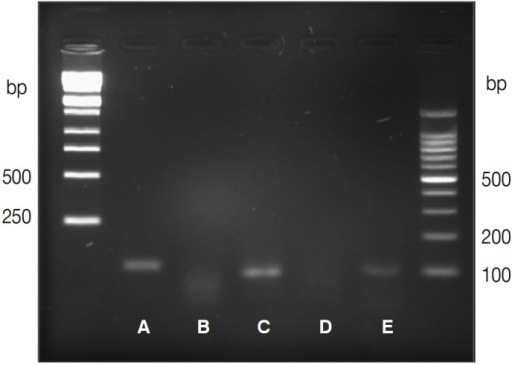 Agarose gel electrophoresis of PCR products amplified using genomic DNA extracted from formalin-fixed, paraffin-embedded gastric tissue, using primers targeting the ribosomal RNA (rRNA) gene. (A) Amplified rRNA gene (114 bp), (B) negative control, (C) amplified rRNA gene (101 bp), (D) negative control, (E) amplified human beta-globulin internal control (110 bp).