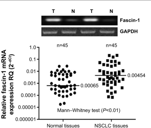 Fascin-1 mRNA was detected by RT-PCR.Abbreviations: NSCLC, non-small cell lung cancer; RT-PCR, real-time polymerase chain reaction.
