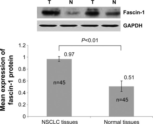 Fascin-1 protein was detected by western blot analysis.Abbreviation: NSCLC, non-small cell lung cancer.