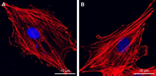 Fluorescence microscopy images of cells double stained with phalloidin for actin filaments (red) and DAPI for nuclei (blue) on Ti (A) and USP-Ti (B) samples.Abbreviations: USP-Ti, Ti surface subjected to USP; USP, ultrasonic shot peening; Ti, titanium.