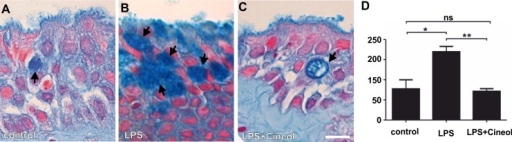 Increased number of mucus-filled cells in LPS-treated nasal slice cultures is significantly reduced by co-treatment with 1,8-cineol.A: Representative Alcian Blue-staining of an untreated nasal slice culture revealed no increased amount of mucus-filled goblet cells (arrows). B: Representative Alcian Blue-staining of LPS-treated nasal slices showed highly increased numbers of mucus-filled goblet cells (Arrows). C: Representative Alcian Blue-staining of cultured nasal slices co-treated with LPS and 1,8-cineol displayed a highly decreased number of mucus-filled goblet cells (Arrows). Scale Bar: 20 μm. D: Quantification of total areas of Alcian Blue-stained slice cultures from four independent donors revealed a significantly increased number of mucin-filled goblet cells in LPS-treated nasal slice cultures, which was significantly decreased after co-treatment with 1,8-cineol. *p < 0.5, **p < 0.01 were considered significant (t-test); ns: not significant (t-test).