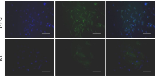 Immunofluorescence staining of CYP17A1 and FSHR in theca cells. Scale bar = 100 μm. The purified cells were examined with immunofluorescence method after 24 h. By a series of titration experiments, the density of TCs was adjusted to approximately 70% confluence. FITC (green) staining CYP17A1 indicated the TCs origin. Hoechst staining (blue) indicated the location of cell nuclei. More than 90% of the cells were stained positive for CYP17A1, confirming the purity of TC cells population. Weak staining with FSHR antibody indicated that these TCs cultures were largely free of GCs contamination.