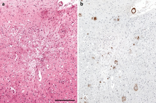 Infarction associated with Aβ amyloid angiopathy. a Microinfarct in cerebral cortex. The lesion is rarefied and gliotic, and includes a few macrophages. b Aβ immunohistochemistry on an adjacent section revealed moderately severe Aβ amyloid angiopathy. Note the circumferential deposition of Aβ in a sulcal arteriole overlying the microinfarct. Bar 250 μm