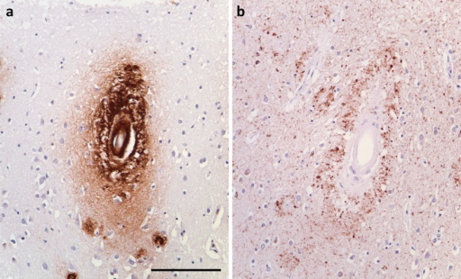 Perivascular tau associated with Aβ amyloid angiopathy. a Arteriolar and dyshoric deposition of Aβ in a patient with severe amyloid angiopathy. b Immunolabelling of an adjacent section for phospho-tau showed accentuated accumulation of tau around the affected arteriole. Bar 250 μm