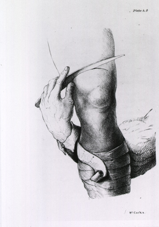 <p>Plate showing the procedure for amputation of the thigh and application of the retractor.</p>