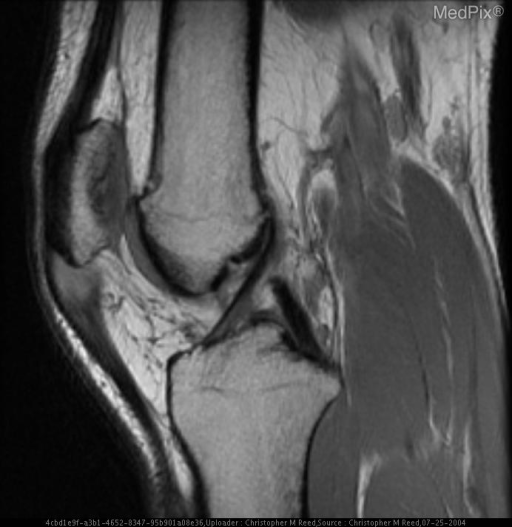 Sagittal Proton Density MR Image demonstrates increased signal and thickening of the patellar enthesis of the patellar tendon.