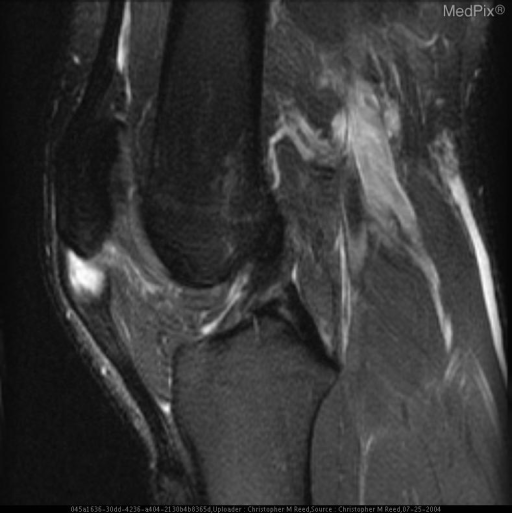 Sagittal T2 FatSat MR Image demonstrates increased signal and thickening of the patellar enthesis of the patellar tendon.