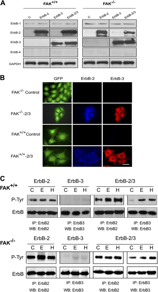 Overexpression of ErbB-2, -3, and -2/3 in FAK+/+ and FAK−/− cells. (A) Cells expressing control retroviral particles or ErbB receptors were subjected to Western blotting using specific ErbB antibodies as described in Materials and methods. (B) Cells were fixed and double stained for ErbB-2 and -3 using specific antibodies and were examined by immunofluorescence microscopy. Note that FAK−/− and FAK+/+ control cells do not express any ErbB-2 or -3 receptors, whereas FAK−/−-2/3 and FAK+/+-2/3 exhibited strong labeling for both receptors. Bar, 40 μm. (C) Cells were serum starved for 24 h and kept unstimulated (control, C) or were stimulated with 20 ng/ml EGF (E) or HRG (H) for 10 min. Cell lysates were immunoprecipitated with anti-ErbB, and the blots were probed using antiphosphotyrosine antibody and reprobed with the corresponding ErbB-specific antibody.