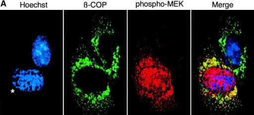 Activated MEK1 is found on the Golgi apparatus in late prophase. NRK cells were blocked in S-phase with aphidicolin. The cells were washed to remove aphidicolin. 7 h after aphidicolin removal, cells were processed for fluorescence microscopy to visualize the Golgi apparatus, activated MEK1, and DNA with antibodies against β-COP, ppMEK, and the DNA-specific dye Hoechst, respectively. (A) Confocal microscopy image showing that activated-MEK1 is localized to the Golgi apparatus in late prophase (condensed DNA*) and not in interphase (uncondensed DNA). (B) Epifluorescence microscopy image showing cells stained with ppMEK antibody that had been preincubated with either mitotically activated MEK (phosphorylated MEK1) or unphosphorylated MEK1. Preincubation of ppMEK antibody with mitotically phosphorylated MEK1 abolished the Golgi complex–specific staining of cells in late prophase (condensed DNA*). Therefore, ppMEK antibody staining is due to the presence of activated MEK1 on the Golgi apparatus.
