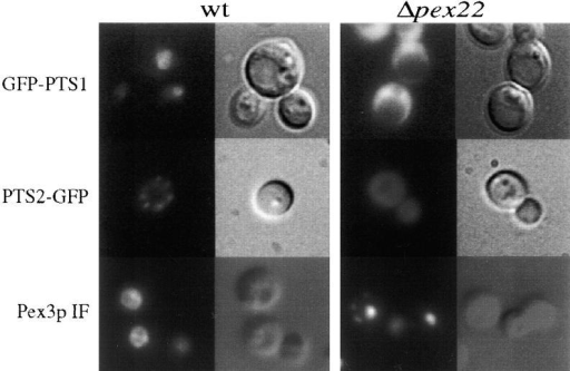 Detection of GFP-PTS1, PTS2-GFP, and Pex3p in wild-type and Δpex22 cells. Wild-type (PPY12) and Δpex22 (STK11) were transformed with constructs expressing GFP-PTS1 and PTS2-GFP. Cells expressing GFP-PTS1 were induced in methanol medium for 16 h, and those producing PTS2-GFP on oleate medium for 16 h. Pex3p was detected by immunofluorescence (IF) in methanol-induced cells. Pictures in the left column show the subcellular localization of the GFP constructs and Pex3p examined by fluorescence microscopy. Pictures in the right column were obtained by using Nomarski optics.