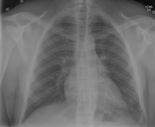 PA and lateral chest radiographs. XXXX/XXXX at XXXX hours.