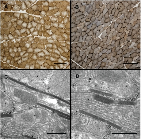 Histochemistry and electron microscopy of muscle fibers from SAN-affected (B, C and D) and control dogs (A).(A and B) Histochemistry showing the combined reaction for SDH and COX. Note the bluish reaction for the affected dog, indicating lack of COX activity. Bar = 200 µm. (C and D) Electron microscopy showing paracrystalline inclusions in a case. Bar = 0.5 µm.