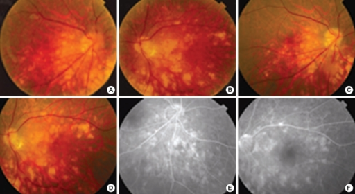 Patient No. 21. Fundus photographs show subacute multifocal choroiditis with accompanying vitreous opacity at initial presentation (A, B) and residual choroiditis accompanying atrophic change at one month later (C, D). Fluorescence angiography of right inferonasal aspect and left posterior pole of retina at one month later from initial presentation (E, F) show atrophic choroidal changes.