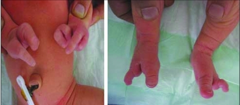 Ectrodactyly deformity of hands and feet of case 1 | Open-i
