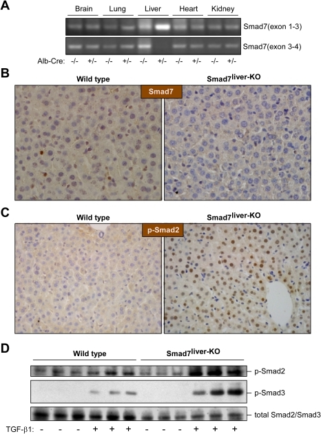 Characterization of Smad7liver-KO mice.(A) Liver-specific deletion of Smad7. RT-PCR analysis was performed with total RNA isolated from multiple tissues in Alb-Cre heterozygous or wild type mice (all mice having Smad7loxP/loxP) with specific primers that amplify mRNA regions corresponding to exons 1–3 or exons 3–4 of Smad7 respectively. (B) Analysis of the Smad7 by immunohistochemistry staining. Representative liver sections (400 X) from wild type and Smad7liver-KO mice were used in immunohistochemistry staining with an anti-Smad7 antibody. The nuclei were stained with haematoxylin. (C) Smad2 phosphorylation is elevated in the liver of Smad7liver-KO mice. Smad2 phosphorylation was analyzed by immunohistochemistry using liver sections from either wild type or Smad7liver-KO mice. The nuclei were stained with hematoxylin. Note that nuclear phospho-Smad2 staining is increased in the liver of Smad7liver-KO mice. (D) TGF-β-induced Smad2 and Smad3 phosphorylation is enhanced by Smad7 deletion in primary hepatocytes. Immunoblotting was performed using total protein lysate extracted from primary hepatocytes using antibodies as indicated. The cells were treated with or without 5 ng/ml of TGF-β1 for 24 hours as indicated after overnight serum starvation.