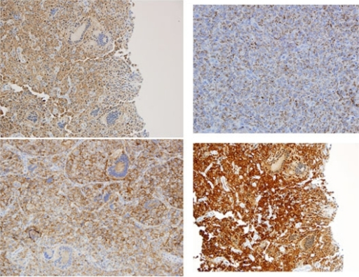 The immunohistochemistry staining pattern: (A) Fascin upper left (B) CD68 upper right (C) CD4 lower left (D) Factor XIIIa lower right.