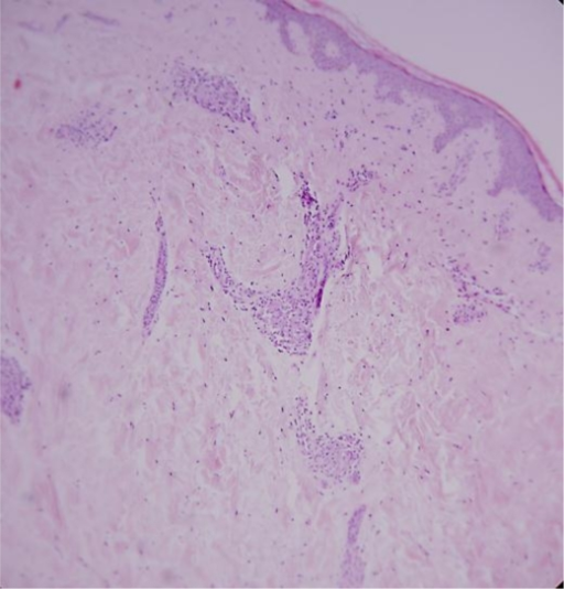 Infiltration of the dermis by lymphocytes and histiocytes, without deposition of mucin (HE ×10).