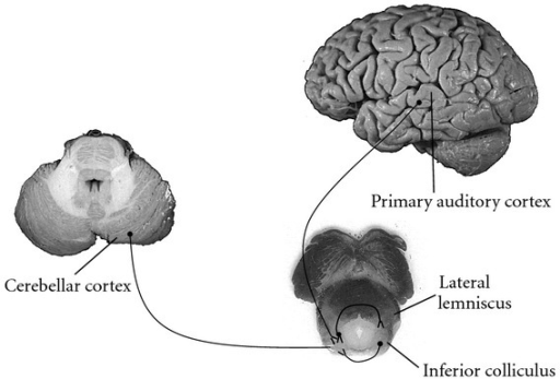 Major afferent connections to the inferior colliculus n | Open-i