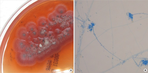 Penicillium marneffei cultured at 25℃ on Sabouraud dextrose agar plate. (A) Gross findings of culture. Colonies revealed distinctive red diffusible pigment and the surface was powdery and gray-green with a white border. (B) Microscopic findings. Lactophenol cotton blue stain preparation from colony revealed metulae and conidia of Penicillium marneffei.