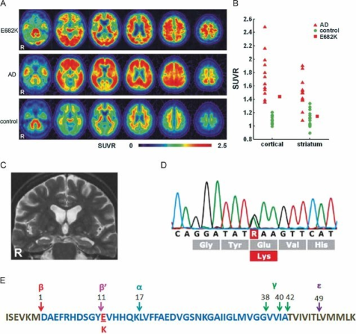 Clinical and genetic studies of a single case of an AD patient carrying the APP E682K mutationAmyloid imaging using [11C] Pittsburgh compound-B (PIB). The PIB SUVR (standardized uptake value ratio) image of index patient E682K compared to a mean image of 13 AD patients with increased cortical PIB uptake and 13 elderly controls with normal aspecific uptake, all set to the same scale.Plot of mean SUVR values in the composite cortical and striatal VOI.Magnetic resonance imaging (MRI) of the index patient showing hippocampal atrophy.DNA sequencing revealed the heterozygous APP E682K mutation.Schematic representation of APP E682K mutation and secretase cleavage sites, numbers were indicated according to Aβ sequence.