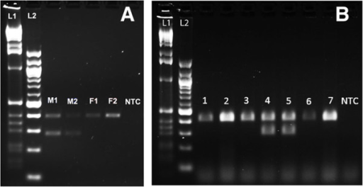 Duplex PCR assay for sex determination in Strigamia maritima. (A) Positive control. Sex-determination assay on adults of known sex. Two males, M1 and M2 generate PCR bands at 398 bp and 288 bp corresponding to the autosomal band and Y chromosome band, respectively. Two females, F1 and F2 generate a single band at 398 bp corresponding to the autosomal band. (B) Experimental assay. Sex determination of single embryos of unknown sex. Lanes 1, 2, 3, 6 and 7 generate single PCR bands (398 bp) and so are inferred to contain DNA derived from female embryos. Lanes 4 and 5 generate two PCR bands (398 bp, 288 bp) and so are inferred to be from males. NTC, no template control (generates no bands). The sizes of a 1 kb (L1) and 100 bp (L2) DNA ladder are shown.