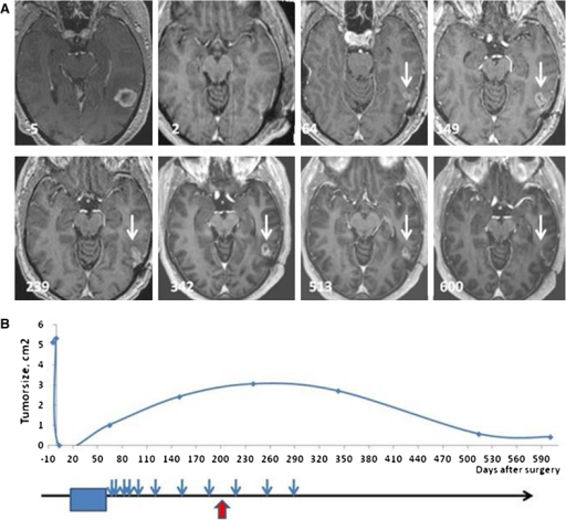 Changes in size of contrast-enhancing tumor over time. a Brain MRI axial T1 images after intravenous gadolinium contrast in patient #5. Days before (negative) and after surgery are noted on the MRI scans. No residual tumor was observed post-operatively (day 2), but at the end of the 6 weeks course of combined chemo/radiotherapy, a small contrast-enhancing lesion could be detected at the anterior margin of the resection cavity, as indicated with the white arrow (day 64). b Maximal area of contrast enhancement plotted against days since surgery (abscissa). Lower part of the figure indicates the timing of concomitant chemo-radiotherapy (blue box), DC vaccinations (blue arrows), and immune response (red arrow)