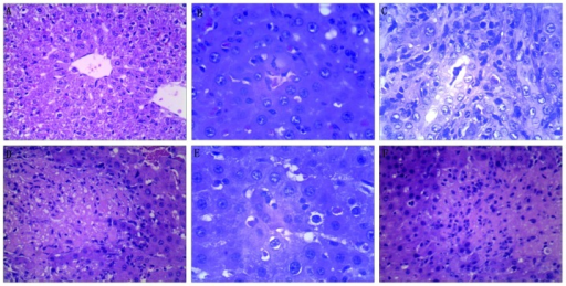 Effects of histone preconditioning on obstructive jaundice-induced liver injury indicated by hematoxylin and eosin staining. (A) In sham rats no histological alterations were observed (sham group). (B) Bile duct ligation in the control group resulted in severe liver injury, demonstrated by an increase in neutrophil infiltration into the liver, as well as an increase in (C) ductal proliferation and (D) severe necroinflammation. Histone preconditioning significantly ameliorated liver injury, shown by the (E) reduction in neutrophil infiltration into the liver and (F) and a decrease in the severity of necroinflammation.