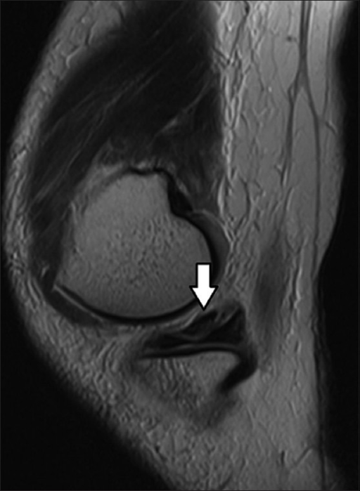 "T2W sagittal image through the medial aspect of the knee joint showing a wedge-shaped soft tissue (arrow) superior to the body and posterior horn of medial meniscus, resembling the ""posteriorly"" flipped meniscus sign"