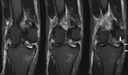 Consecutive STIR coronal images showing complete tear of the femoral attachment of medial collateral ligament. The torn ligament is seen internally displaced and lying superior to the medial meniscus (arrows)